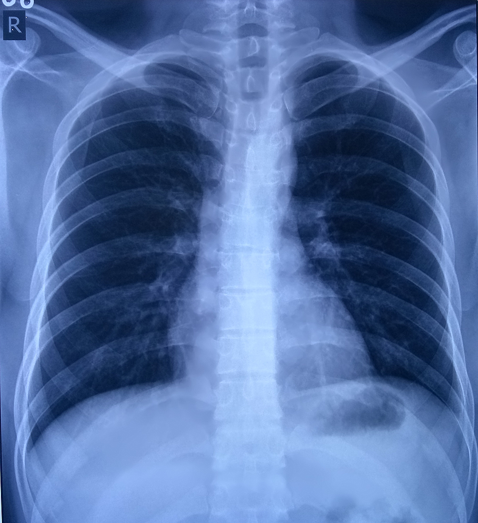 Chest-X-Ray-of-the-patient-with-belly-dancer's-dyskinesia-showing-apparently-normal-study