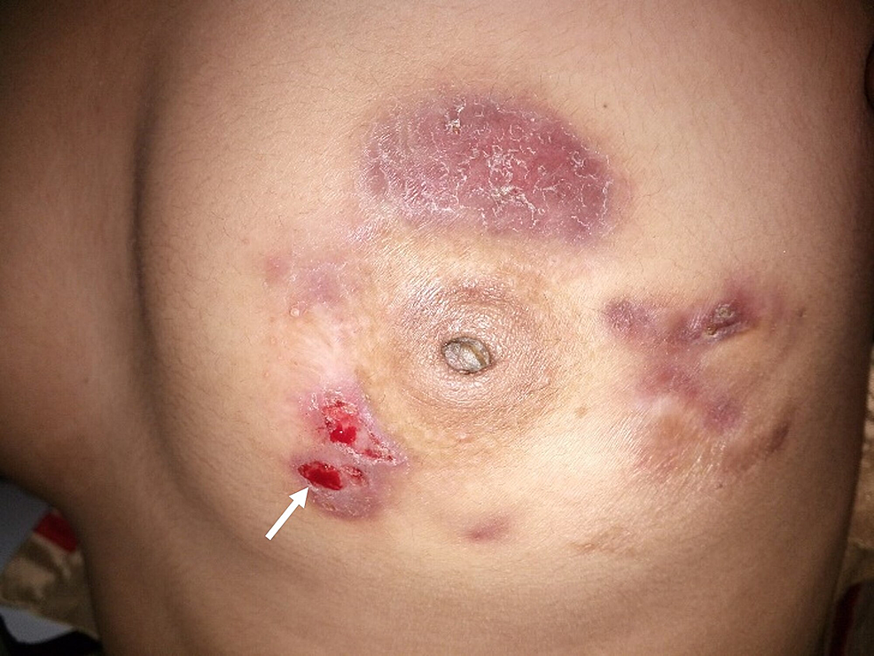 Left-breast-of-the-patient-showing-erythematous-plaque-(white-arrow)
