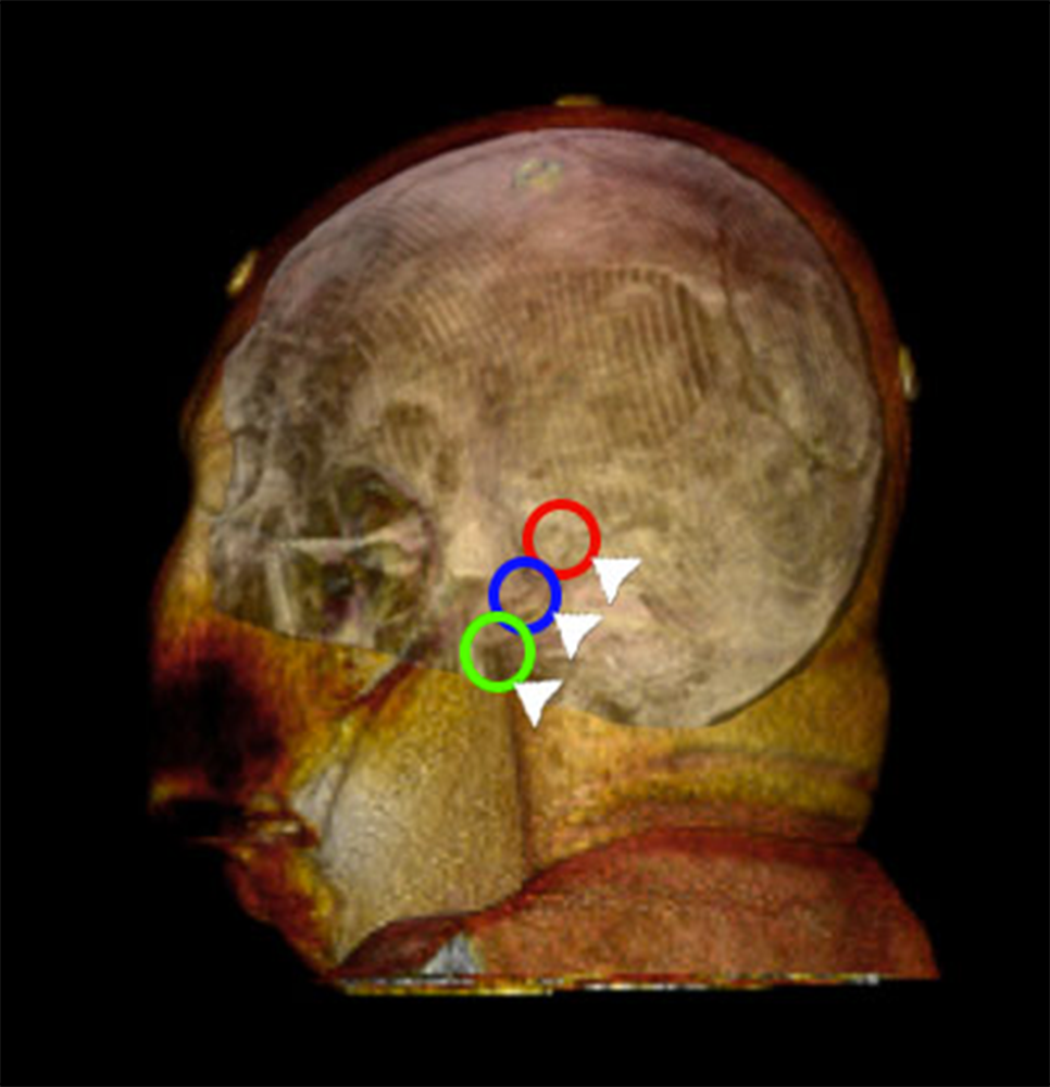Targeted-mini-craniotomies-for-retromastoid-retrosigmoid-approaches.