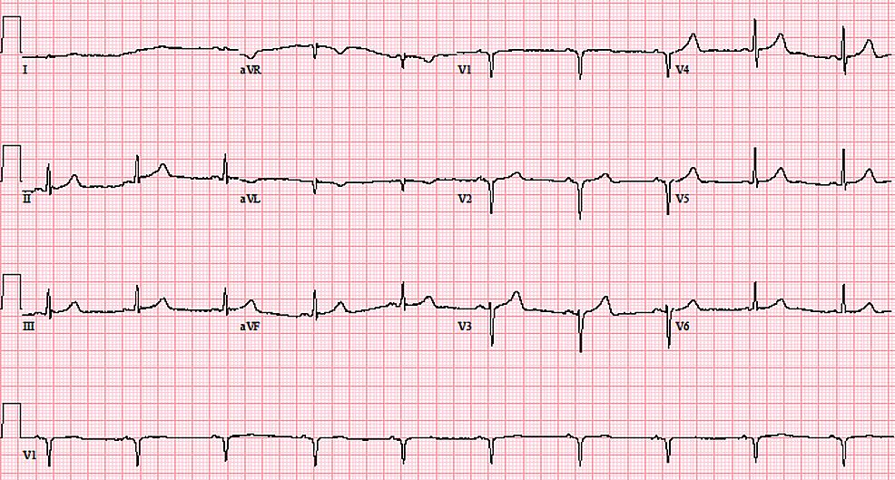 Electrocardiogram-at-presentation-displaying-deep-Q-waves-in-V1-V2-indicative-of-possible-septal-infarction