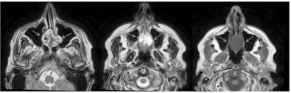 Magnetic-resonance-imaging-(MRI)-scan-at-diagnosis.