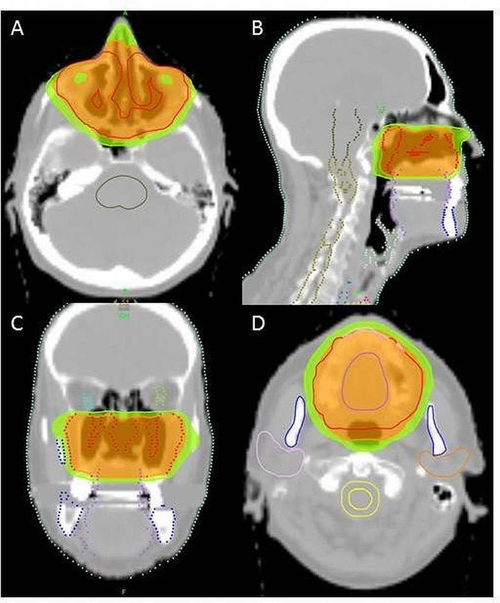 Intensity-modulated-radiotherapy-(IMRT)-treatment-planning-by-helical-tomotherapy.