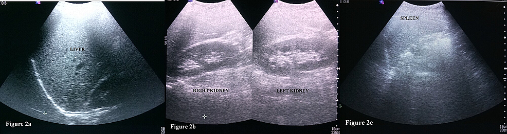 Ultrasound-abdomen-of-the-patient-with-belly-dancer's-dyskinesia