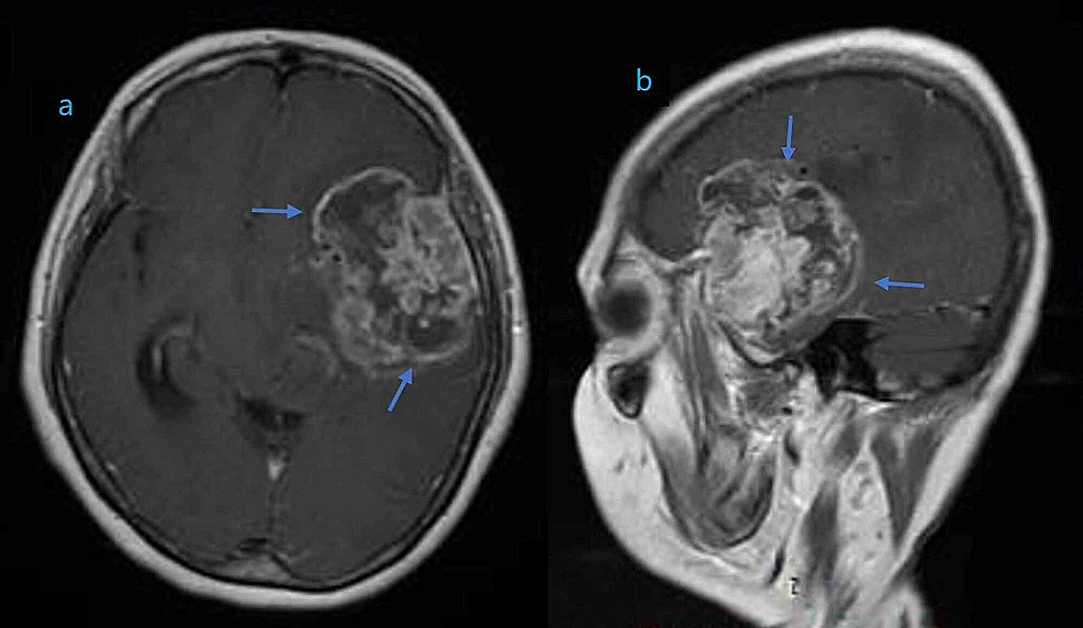 Magnetic-resonance-imaging-(MRI)-of-the-brain-showing-an-enhancing-mass-of-heterogeneous-density-involving-the-left-temporal-lobe-in-coronal-(a)-and-sagittal-(b)-planes.