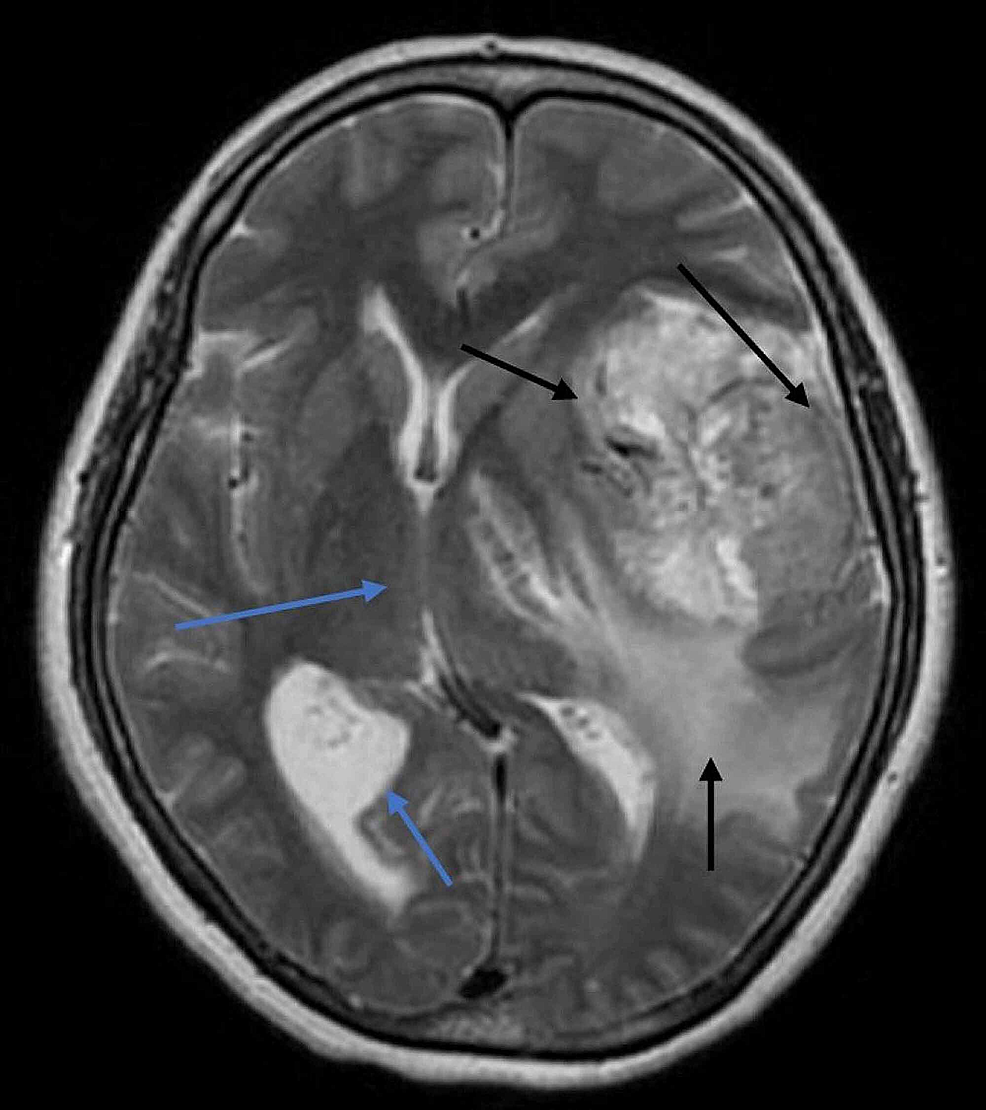 Axial-FLAIR-T2-weighted-image-of-the-patient's-hemisphere,-showing-hypointense-to-hyperintense-irregular-mass-with-parenchymal-involvement-and-perilesional-vasogenic-edema-(black-arrows).-The-mass-was-causing-midline-shift,-and-mild-dilation-of-the-contralateral-lateral-ventricle-was-also-identified-(blue-arrows).