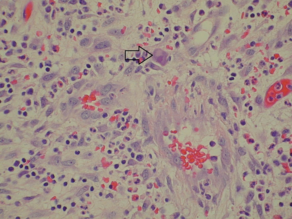 Haemotoxylin-and-eosin-(H&E)-stain:-histopathology-slide-of-the-fistulous-tract-in-the-urinary-bladder
