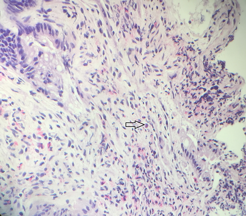 Haemotoxylin-and-eosin-(H&E)-stain:-slide-from-colon-and-sigmoid-resection-specimen