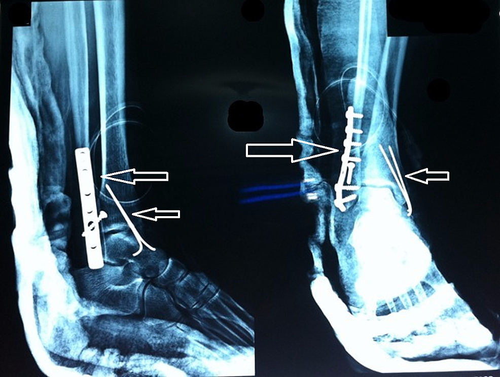X-ray-left-foot-