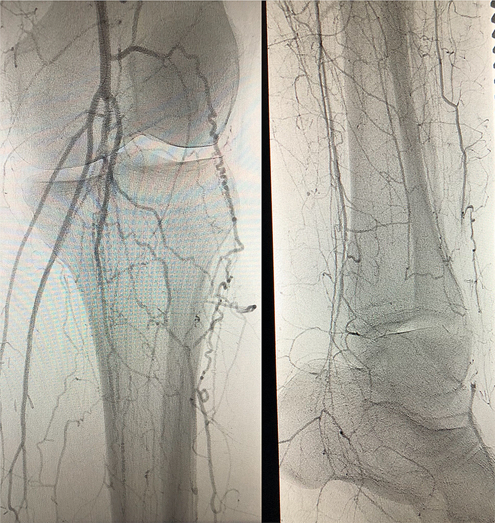 Right-Lower-Extremity-CT-Angiogram-April-2017