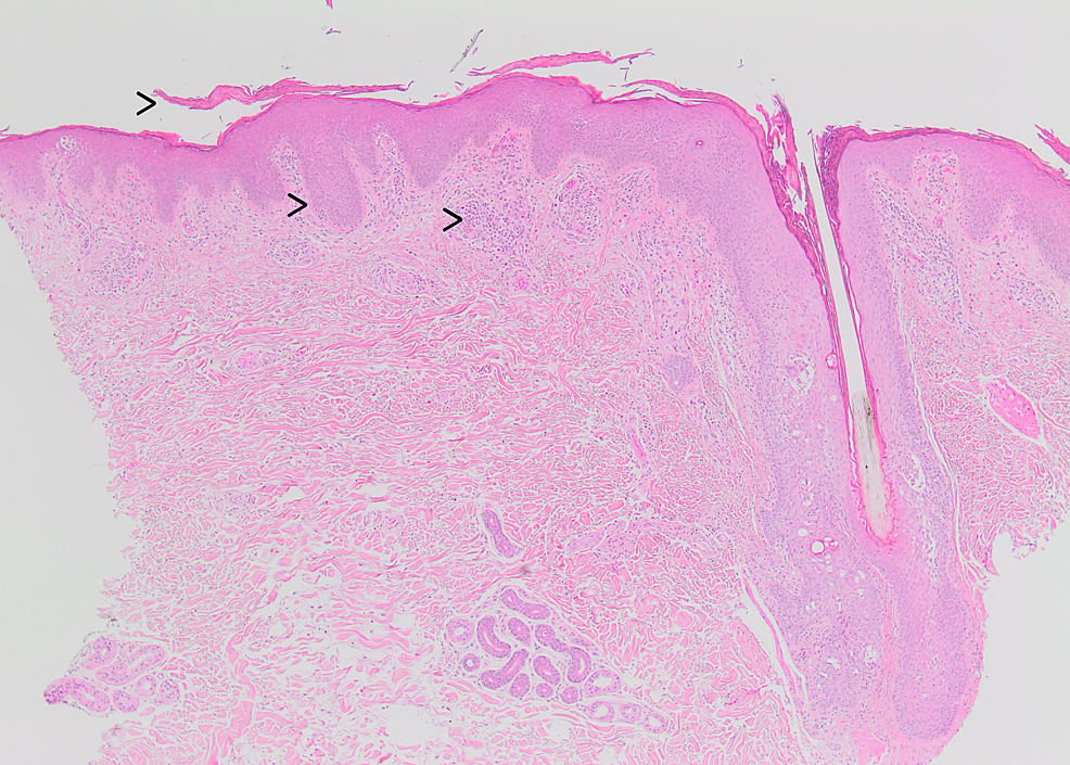 (Left-to-right)-The-skin-biopsy-shows-parakeratosis-with-irregular-acanthosis-and-superficial-perivascular-mixed-inflammatory.-In-the-field,-an-intact-hair-follicle-is-also-seen-(H&E-stain-X-40).