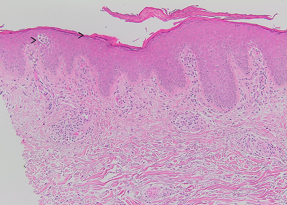 (Left-to-right)-In-the-epidermis,-rare-Langerhans-cell-microabscesses-while-the-granular-layer-is-maintained-(H&E-stain-X-100).