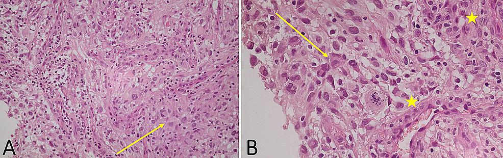 Histopathologic-analysis