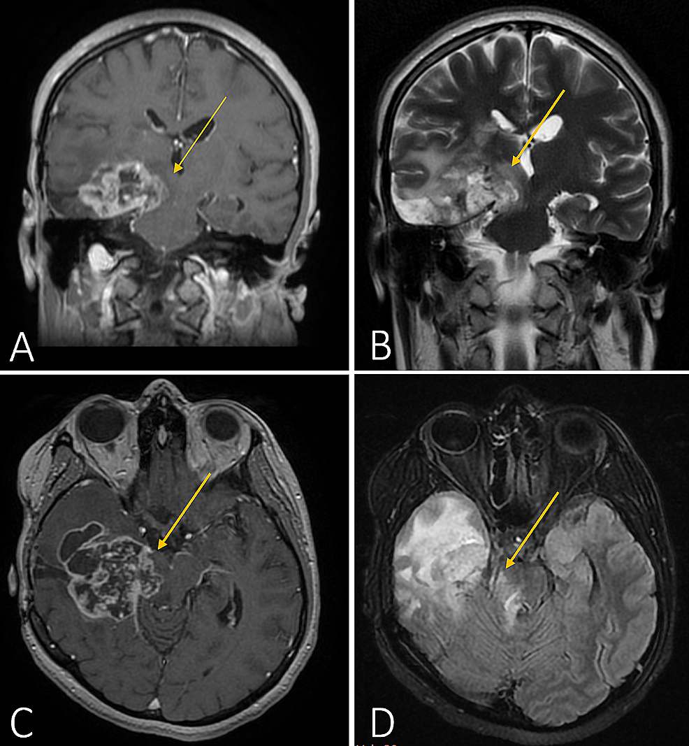 Cranial-MRI-prior-to-the-third-surgery