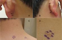 Article box 589ebb00669411e798cf0fe9f97b8094 clinical collage   arrows