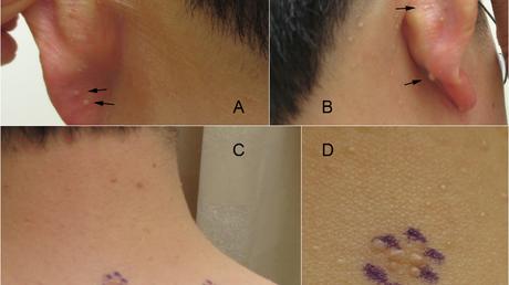 Content card 589ebb00669411e798cf0fe9f97b8094 clinical collage   arrows
