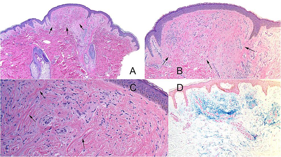 Histopathology-of-familial-multiple-trichodiscoma-associated-trichodiscoma.