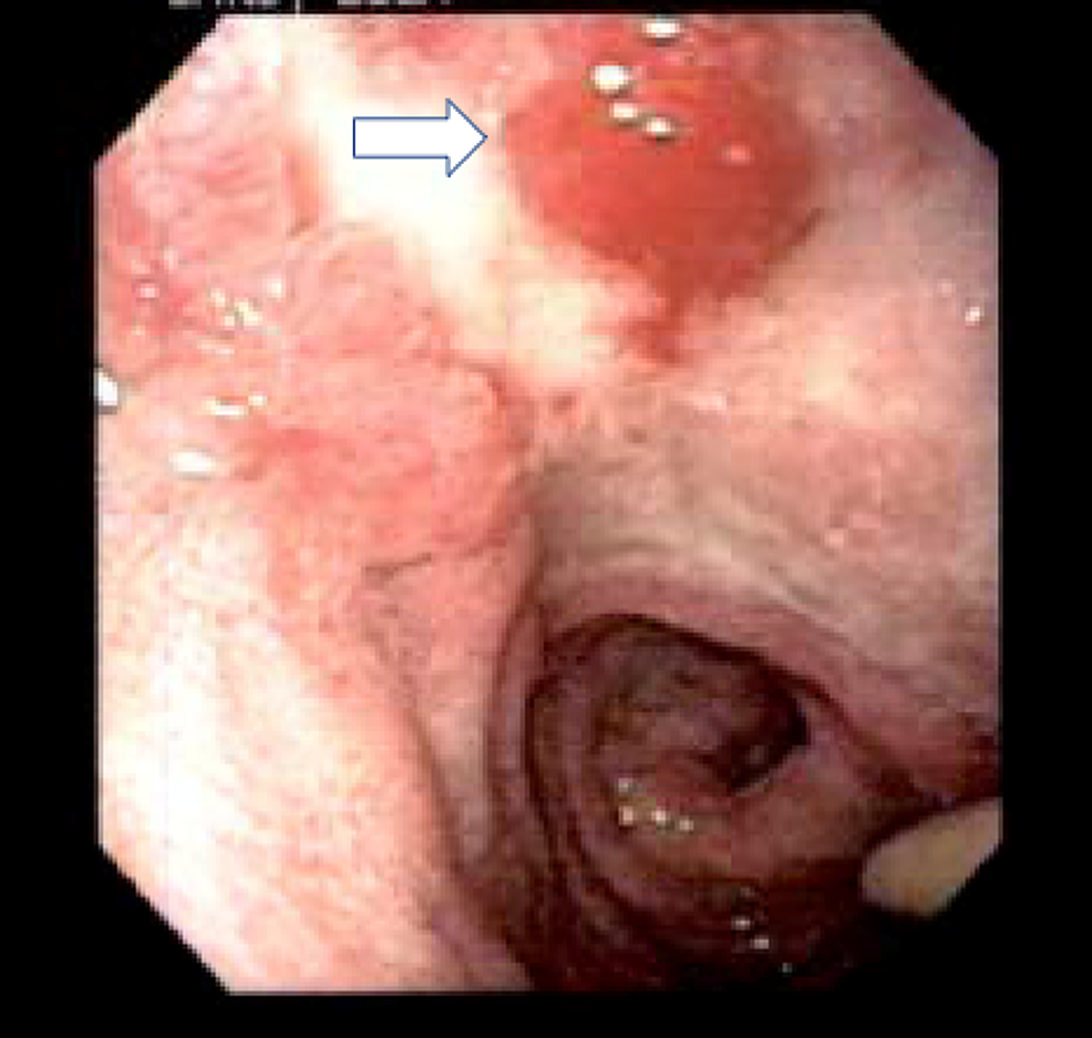 Endoscopic-view-of-posterior-duodenal-ulcer-(indicated-by-white-arrow)-in-the-patient