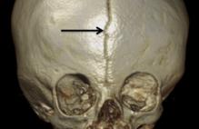 Article box 9de15bf055f511e7ad2d69f480c58d4b fig. 1 anterior fontanelle wormian bone
