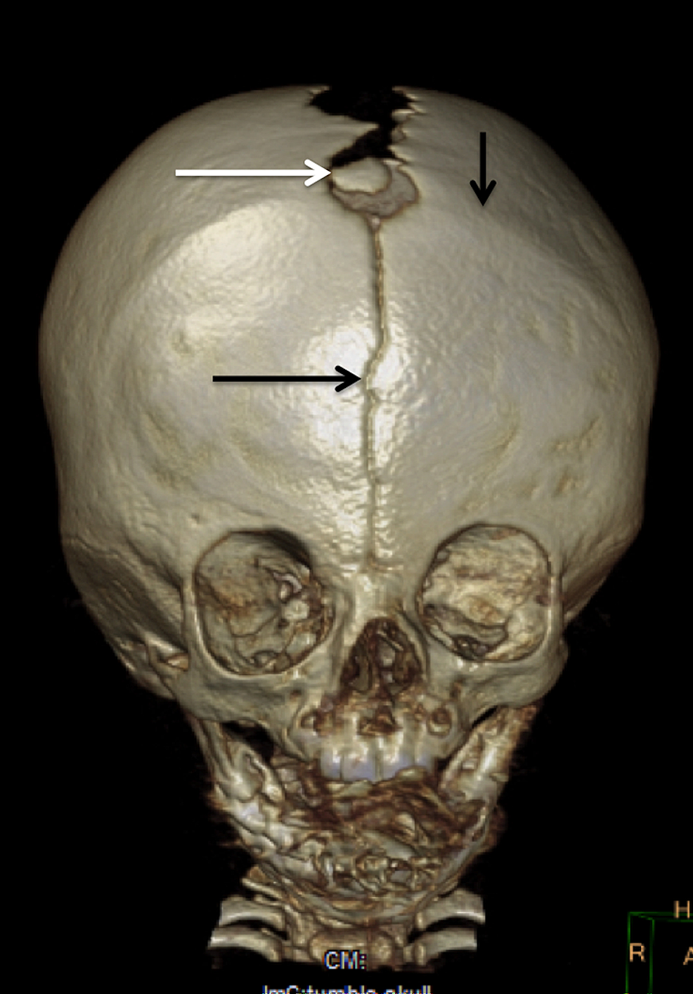 Anterior-fontanellar-wormian-bone-in-a-six-month-old-male-infant