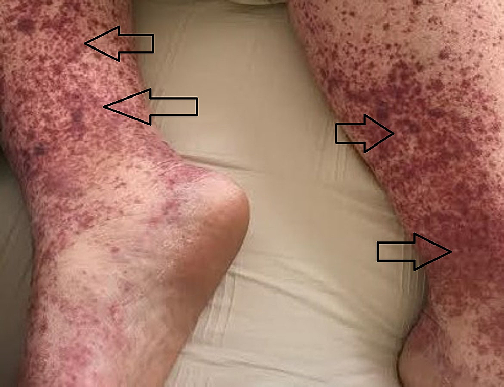 Bilateral-view-of-pigmented-purpuric-macules-coalescing-into-purpuric-plaques-on-lower-extremities-bilaterally
