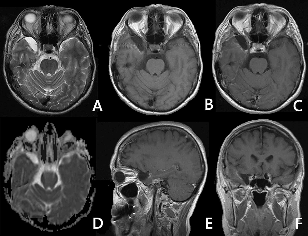 No4l9zll Ul5sm Label f is the petroclival synchondrosis which is important as this is…» https www cureus com articles 47813 chondrosarcoma of the skull base a case study and literature review