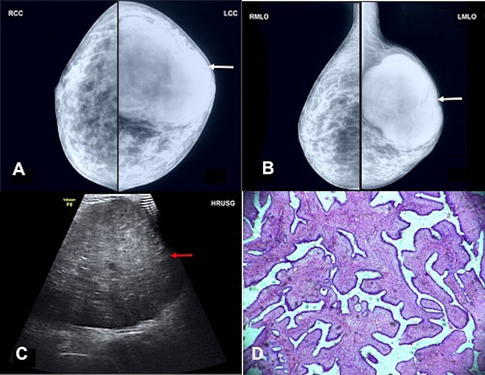 A-35-year-old-female-patient-of-phyllodes-tumor