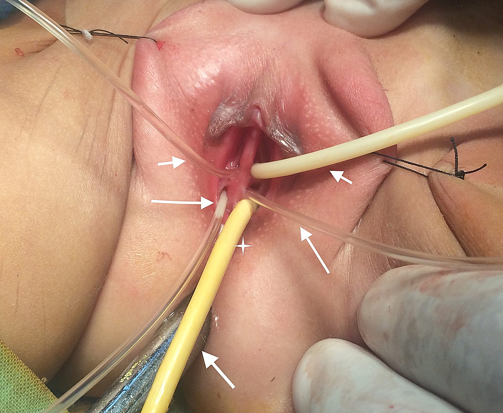 Examination-under-anesthesia-showing-two-urethral-openings-(small-arrows-at-the-top),-two-vaginal-openings-(large-arrows),-ectopic-anal-opening-(star),-and-normal-anal-opening-at-the-bottom-(arrow-below)