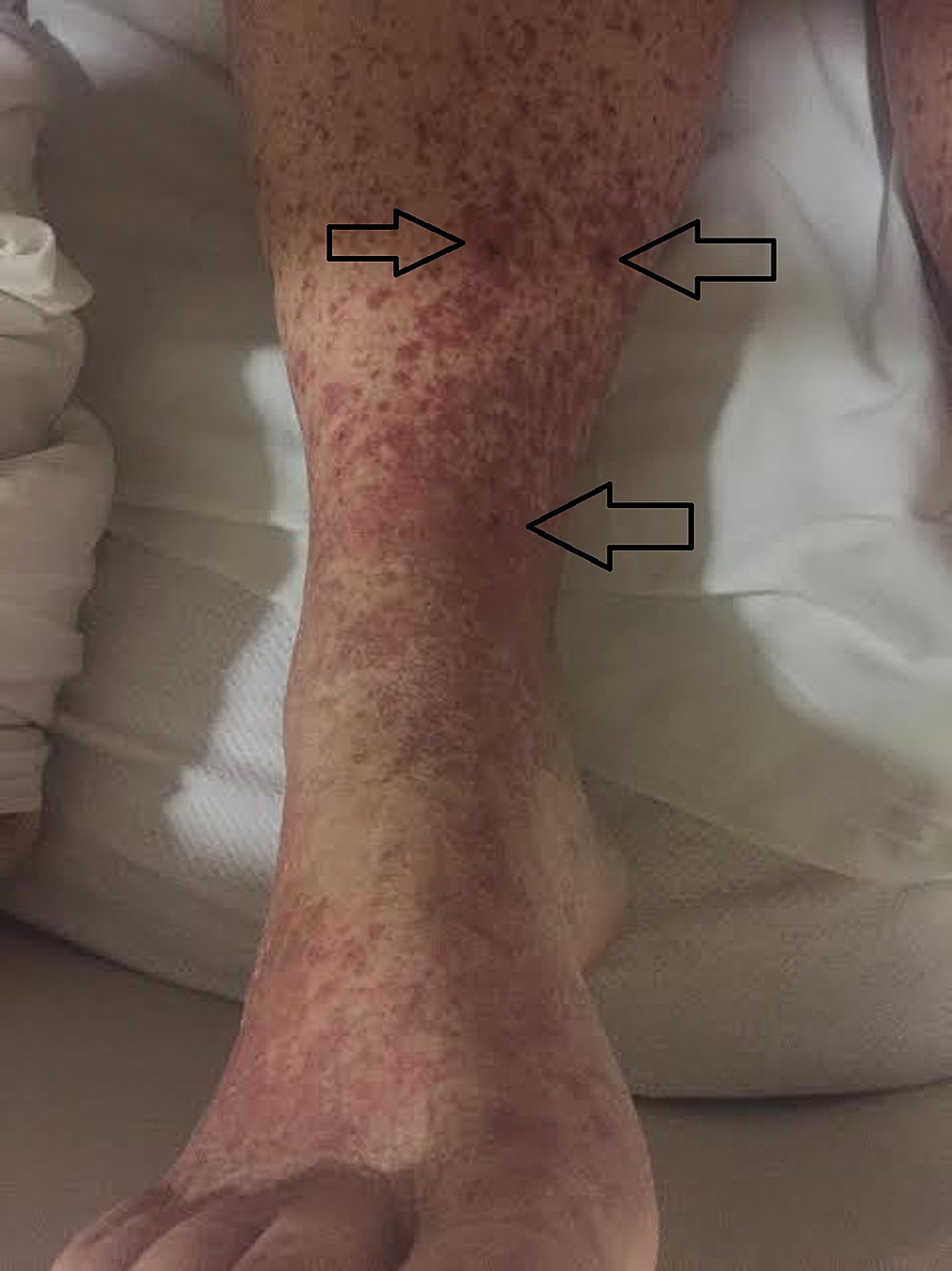 Unilateral-view-of-pigmented-purpuric-macules-coalescing-into-purpuric-plaques-on-lower-extremities-bilaterally