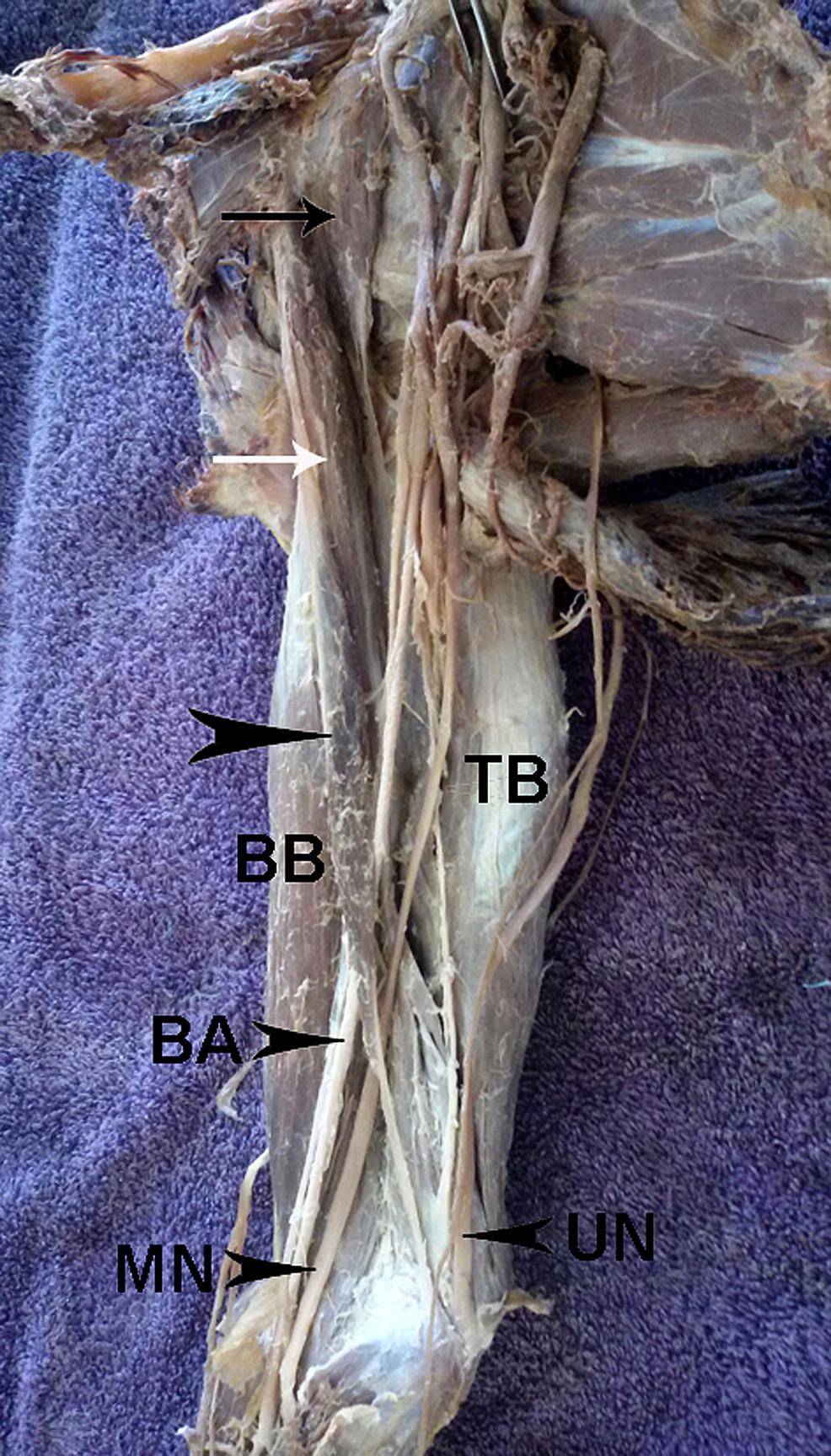 Photograph-of-the-right-brachium