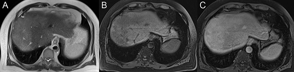 Hepatic-fibrosis
