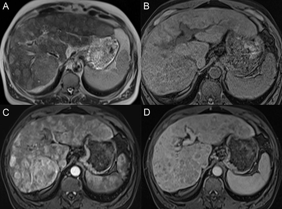 Multifocal-hepatocellular-carcinoma