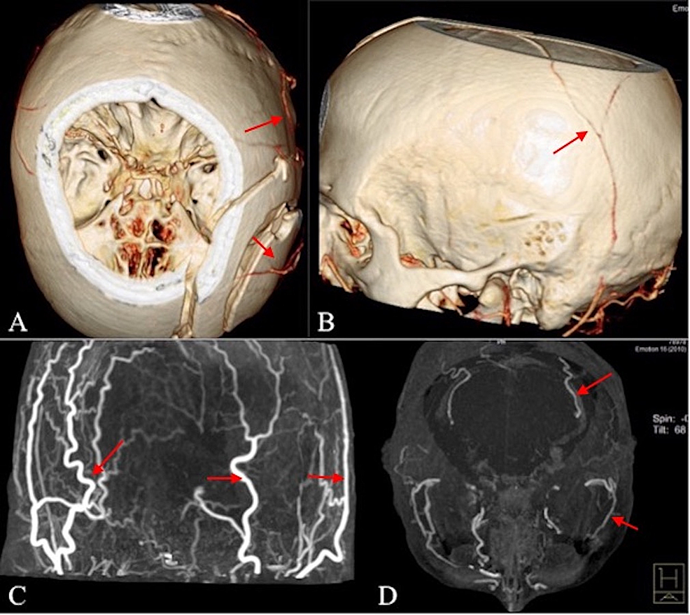 CT-angiography-with-3D-reconstruction