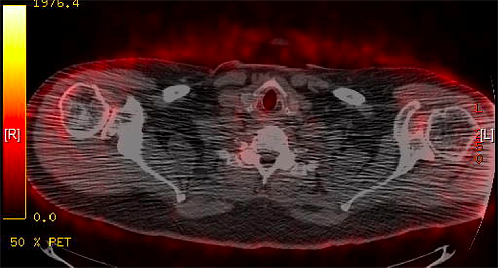 Negative-PET-scan-11/18/2008