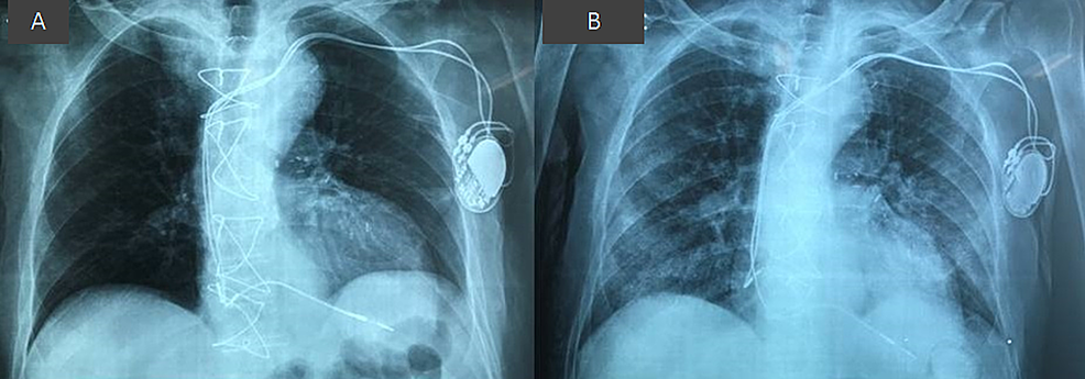 (A)-Chest-X-ray-on-admission.-(B)-Bilateral-pulmonary-infiltrates-on-chest-X-ray-24-hours-later.