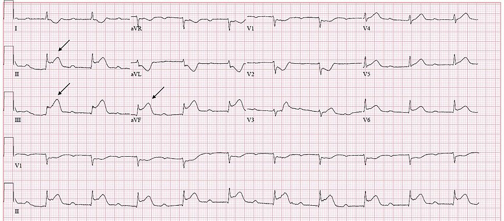 Electrocardiogram-upon-presentation