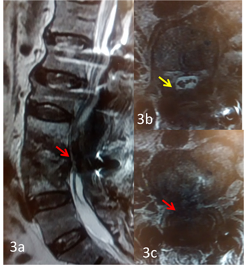 MRI-scans-of-T2W-sagittal-and-axial-sections-showing-marked-compression-of-the-thecal-sac-at-L3-4-level