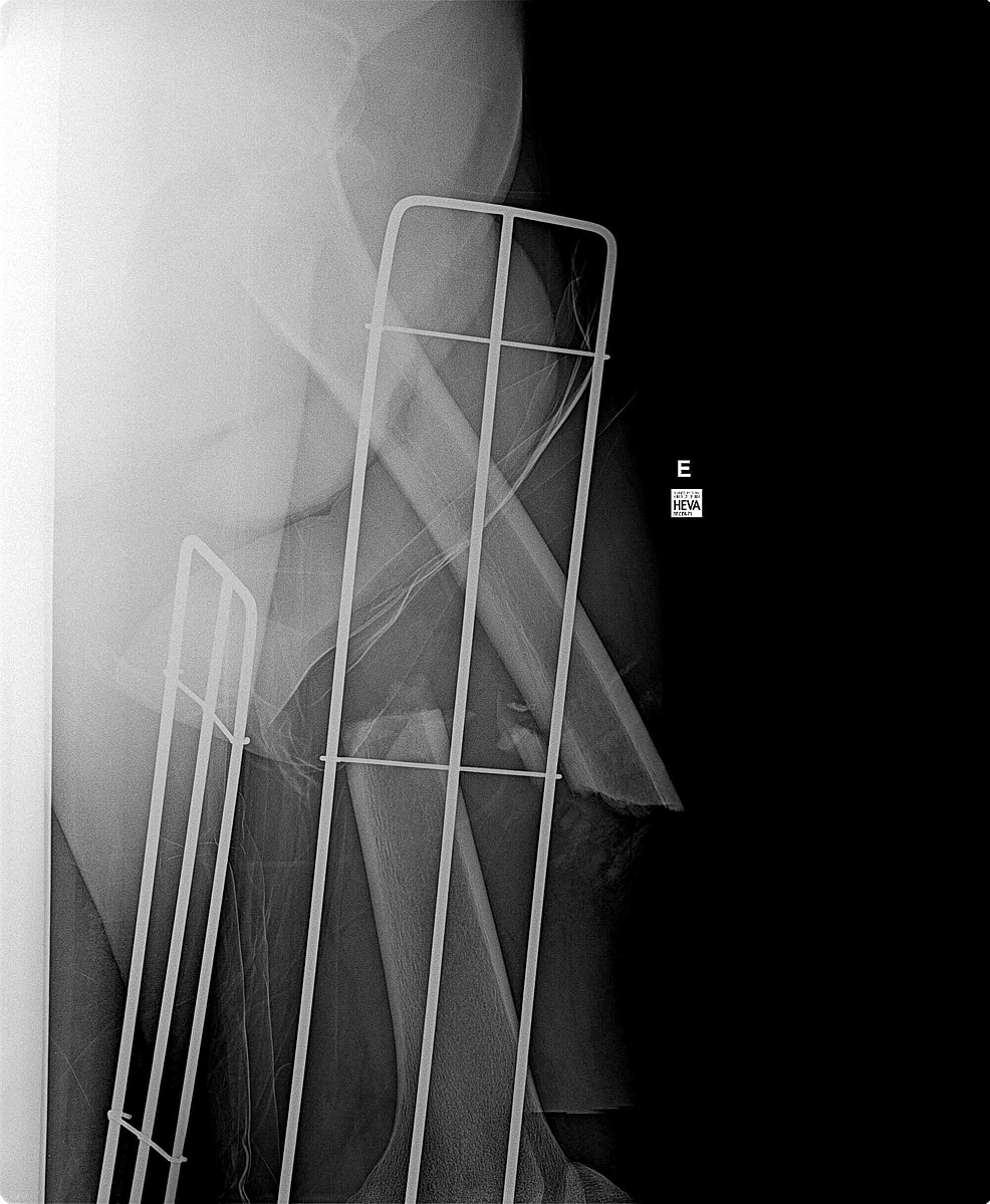 X-ray-showing-open-displaced-femur-fracture