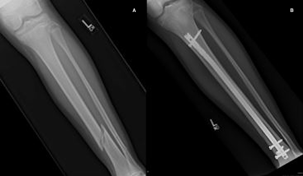 Pre--(A)-and-post-operative-(B)-images-of-physeal-sparing-RIMN