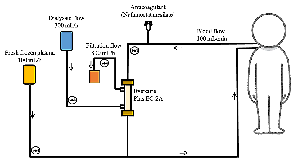 The-circuit-of-continuous-plasma-exchange-with-dialysis