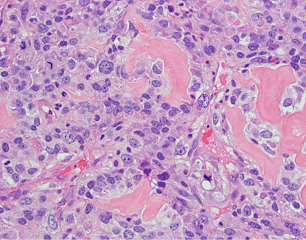 High-power-(400x,-H&E-stain)-view-of-neoplastic-cells-shows-marked-nuclear-atypia,-a-brisk-mitotic-activity-and,-focally-between-cells,-deposition-of-eosinophilic-matrix-consistent-with-malignant-osteoid.