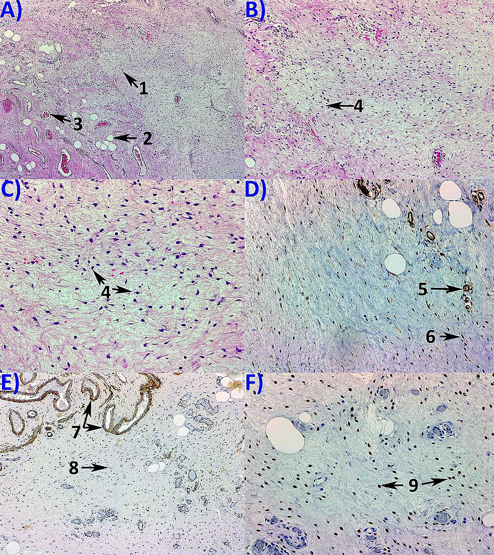 Pathology-examination.-(A)-Hematoxylin-and-Eosin-staining-using-50x-objective-revealing-tumor-proliferation-with-scarce-tumor-cells-(1);-adipocytes-(2)-and-blood-vessels-(3)-can-be-observed;-no-tumor-necrosis-is-seen.-Hematoxylin-and-Eosin-staining-using-100x-(B)-and-200x-(C)-objectives,-showing-fusiform-and-stellate-cells-(4)-with-low-mitotic-activity,-with-abundant-stroma.-Immunohistochemistry-expression-using-200x-objective-revealing-of-CD-34-positivity-in-the-tumor-cells-(5)-and-blood-vessels-(6)-(D);-100x-objective-revealing-muscle-specific-actin-(MSA)-positivity-in-the-muscular-layer-of-blood-vessels-(7)-but-negative-in-the-tumor-cells-(8)-(E);-200x-objective-revealing-ER-positivity-in-the-tumor-cells-(F).