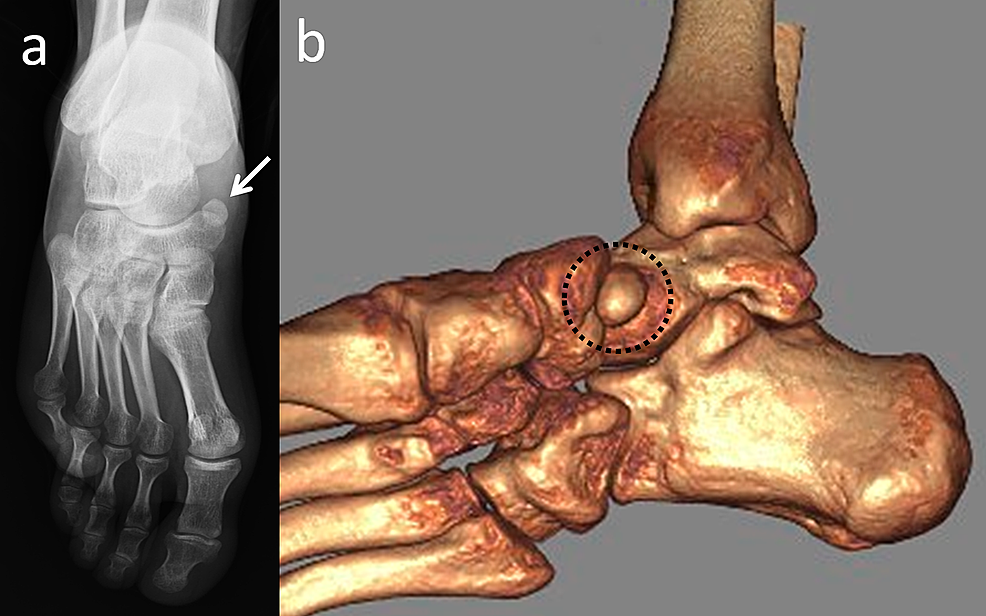A-47-year-old-male-patient-with-an-asymptomatic-accessory-navicular-bone