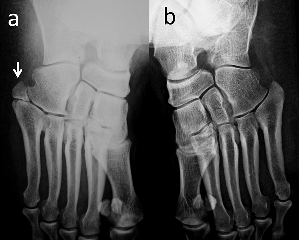 Bilateral-anteroposterior-foot-radiograph-of-a-patient-with-unilateral-os-vesalianum-pedis