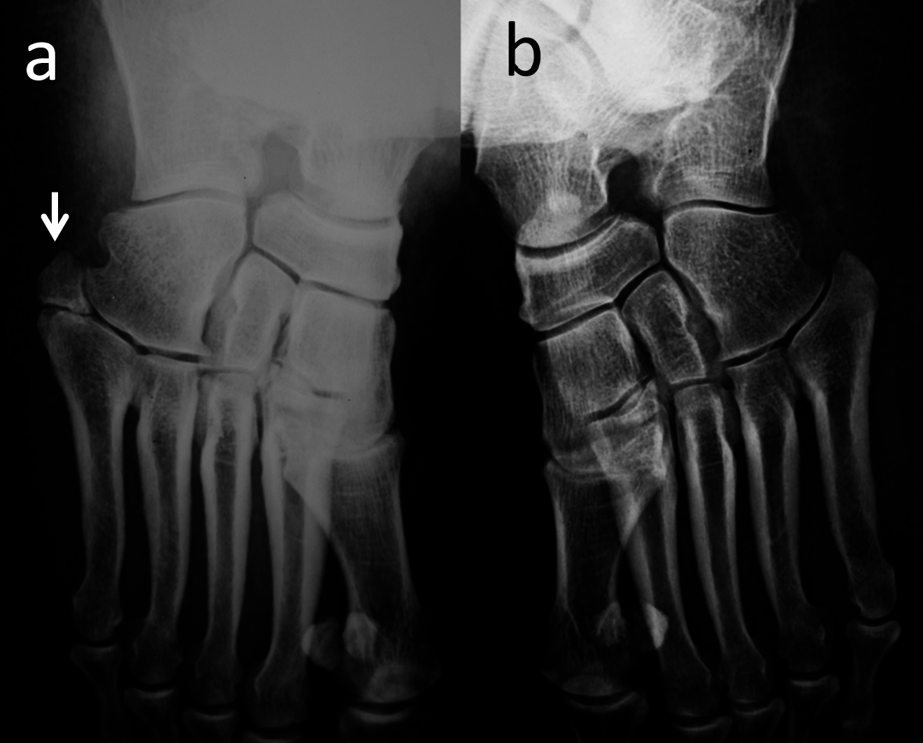 Cureus   Accessory Ossicles of the Foot and Ankle: Disorders and a ...