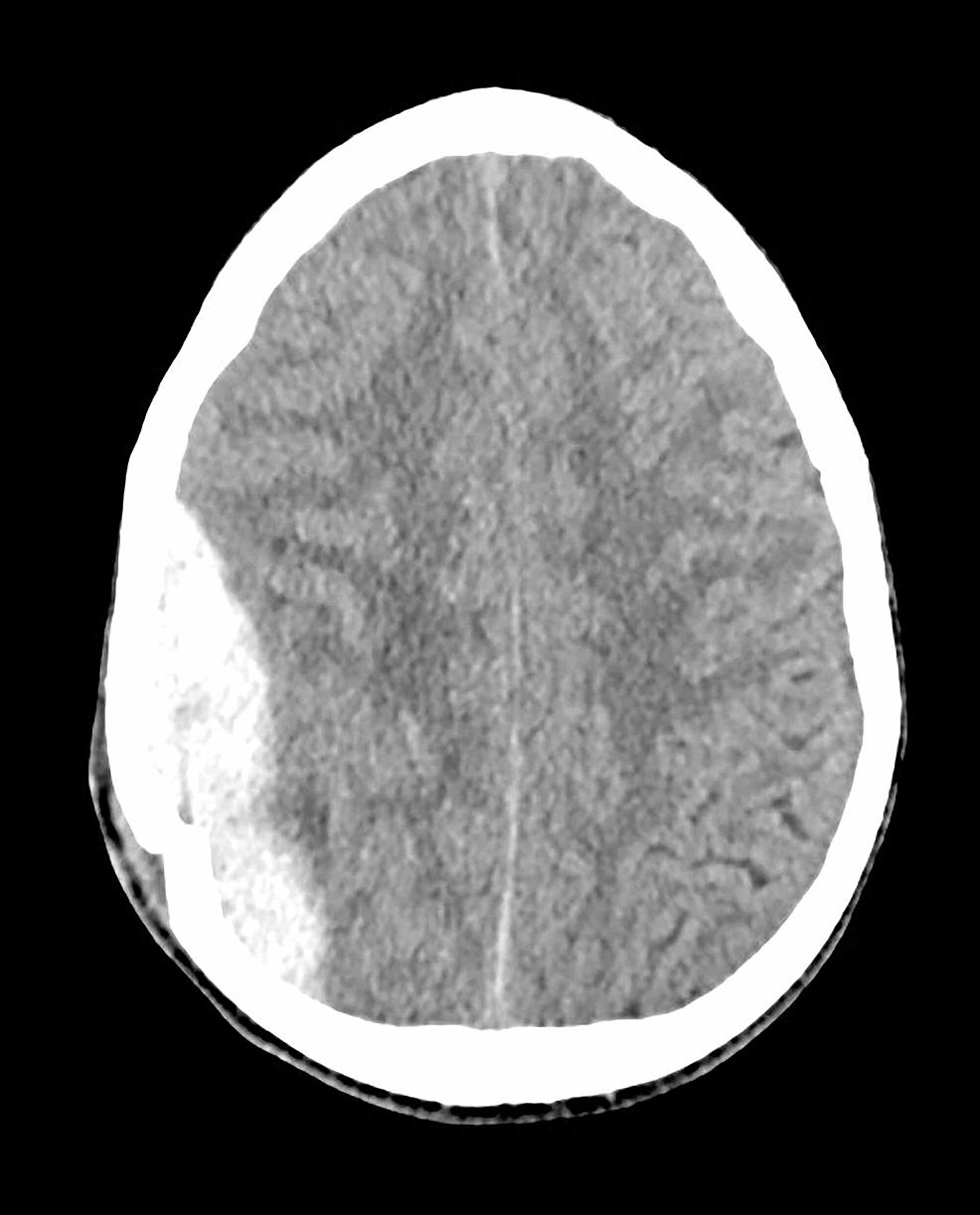 Epidural-hematoma-underlying-a-depressed-skull-fracture