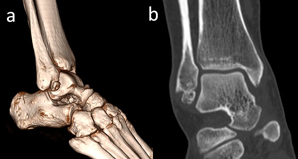 A-42-year-old-male-patient-with-a-united-anterior-talofibular-ligament-avulsion-fracture