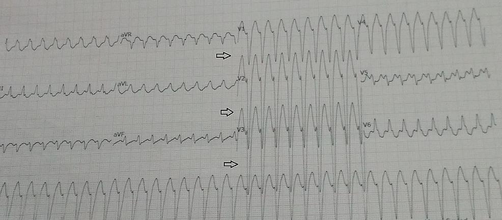 ECG-tracing-shows-palonosetron-induced-VT