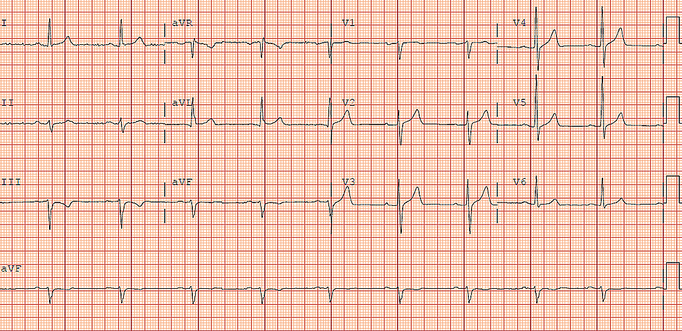 Electrocardiogram-(ECG)-