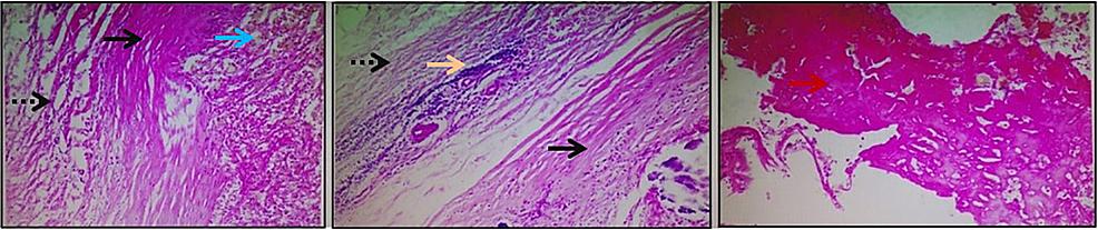 Mastectomy-specimen
