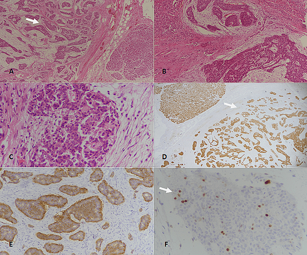 Well-differentiated-neuroendocrine-tumor-(WDNET),-grade-2-of-the-pancreas.-(A):-H&E-stained-section-at-40x-magnification-showing-clusters-of-neoplastic-neuroendocrine-cells-(arrow).-(B):-H&E-stained-section-at-100x-magnification-revealing-neuroendocrine-tumor-with-nested-architecture.-(C):-400x-magnification-(H&E-staining)-showing-tumor-cells-with-moderate-nuclear-atypia-and-stippled-coarse-chromatin.-(D):-Pancytokeratin-(CKAE1/AE3)-staining-showing-diffuse-positivity-(arrow)-in-tumor-cells.-(E):-Synaptophysin-immunostaining-depicting-diffuse-positivity-in-tumor-cells.-(F):-Ki67-immunostaining-showing-5%-proliferative-index;-nuclear-positivity-is-seen-in-few-tumor-cells-(arrow).